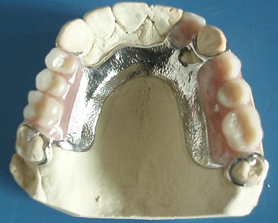 tandtechniek De Haarlemmermeer